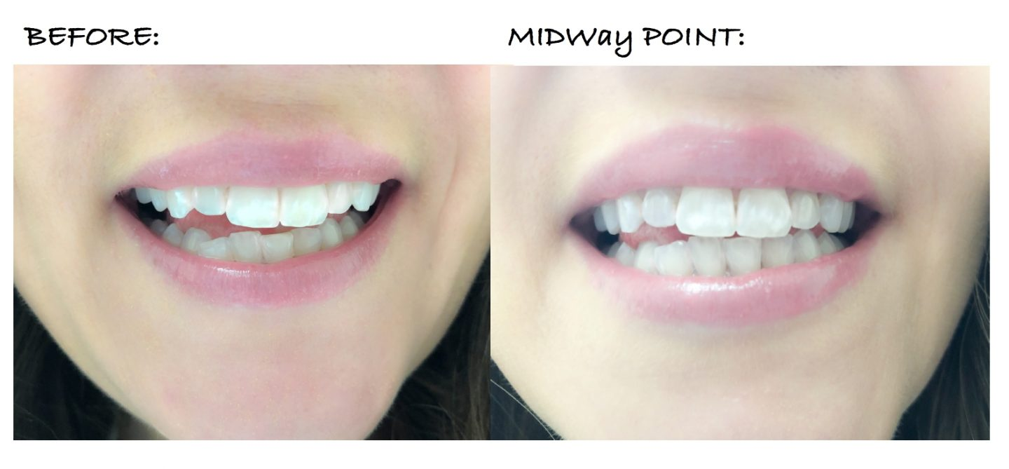 affordable teeth straightening at home, candid co update, midway point, my journey to straighter and whiter teeth, affordable teeth aligners, white midi dress panama hat outfit, what to wear to a summer party