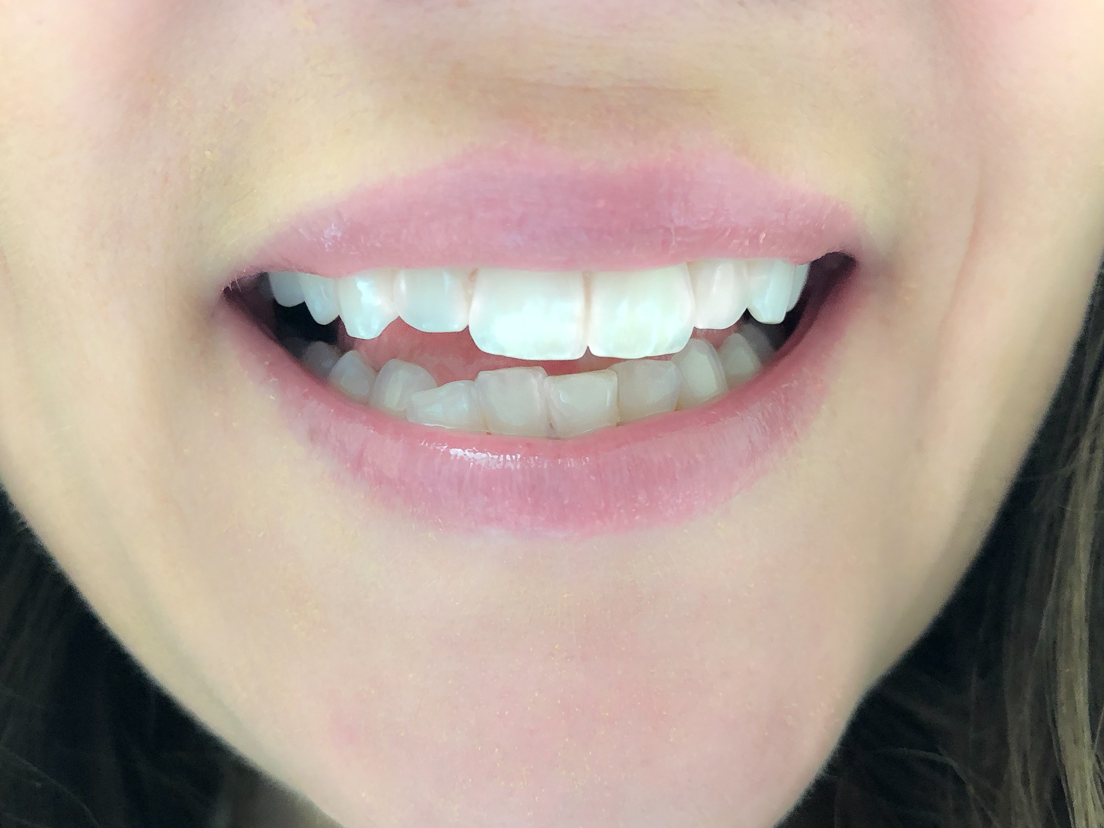 straighten crooked teeth at home without needing to see an orthodontist, fastest most affordable way to straighten teeth, candid co